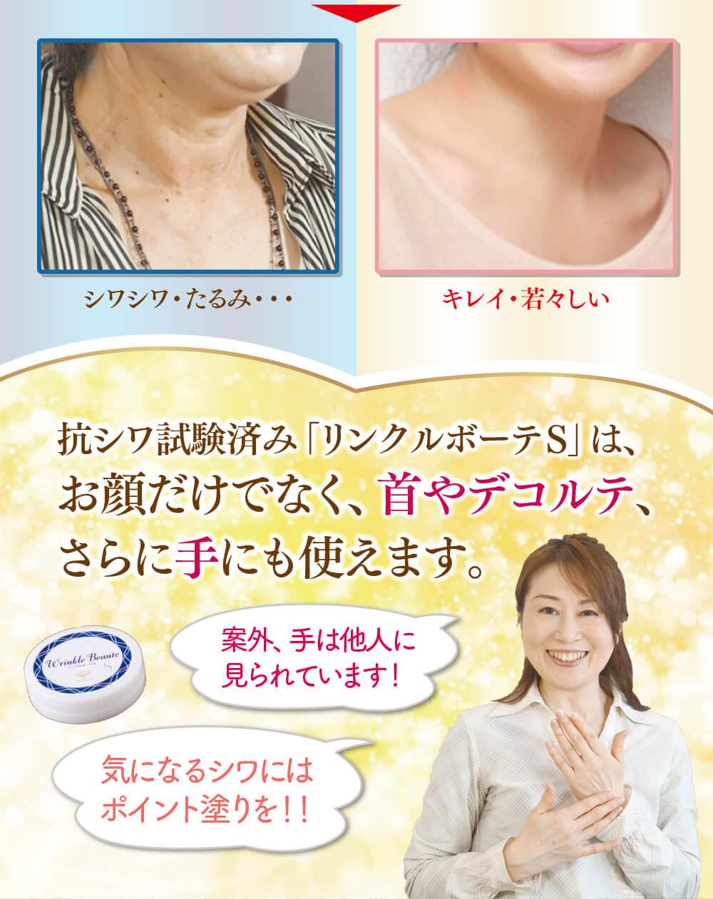 抗シワ試験済みリンクルボーテSはお顔だけでなく、首やデコルテ、手にも使えます。案外手は人に見られています。