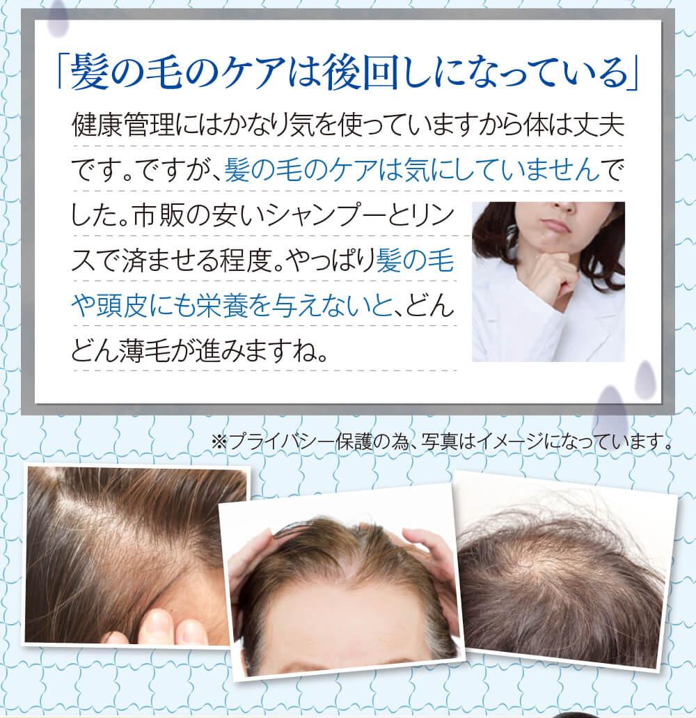 「髪の毛のケアは後回しになっている」健康管理にはかなり気を使っていますから体は丈夫です。ですが、髪の毛のケアは気にしていませんでした。市販の安いシャンプーとリンスで済ませる程度。やっぱり髪の毛や頭皮にも栄養を与えないと、どんどん薄毛が進みますね。